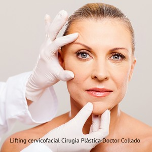 Lifting cervicofacial Doctor Collado